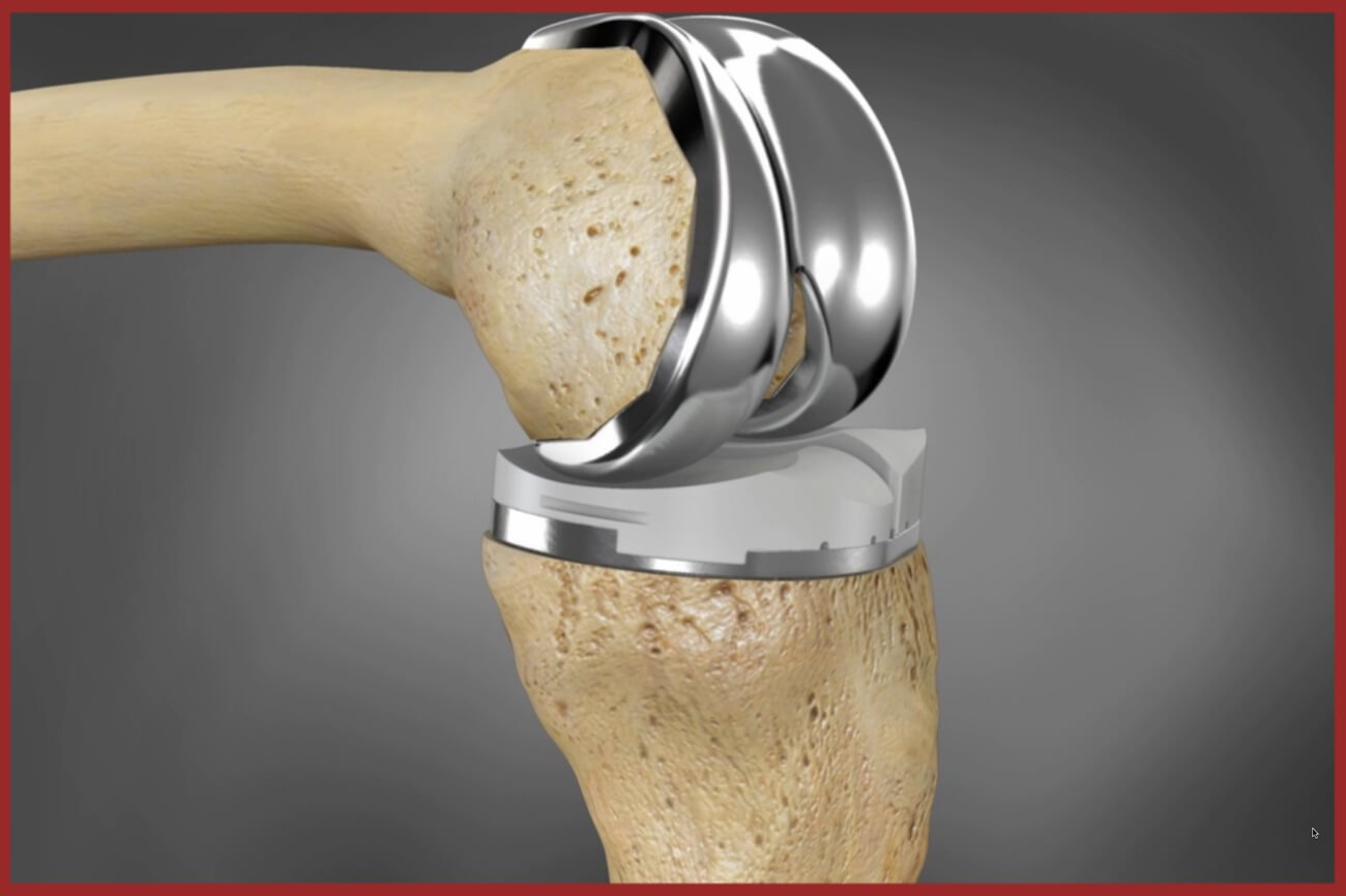 Knee Replacement Surgery Cost In India