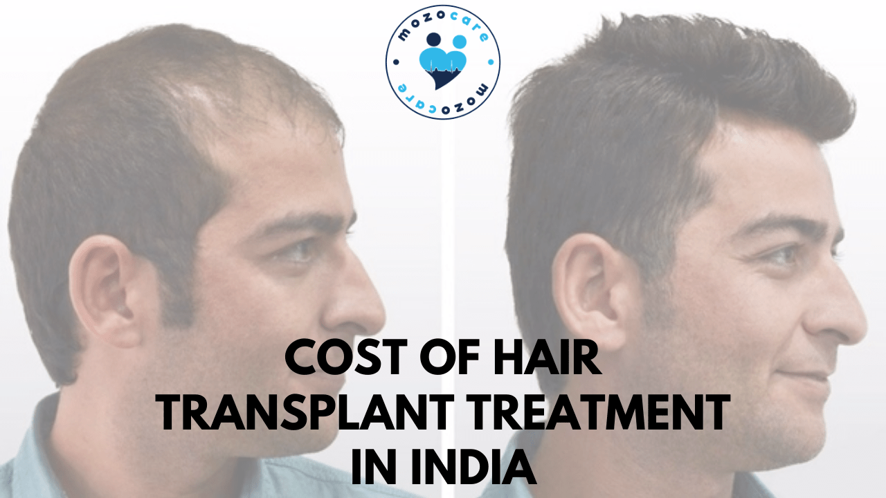 Cost of Hair Transplant Treatment In India