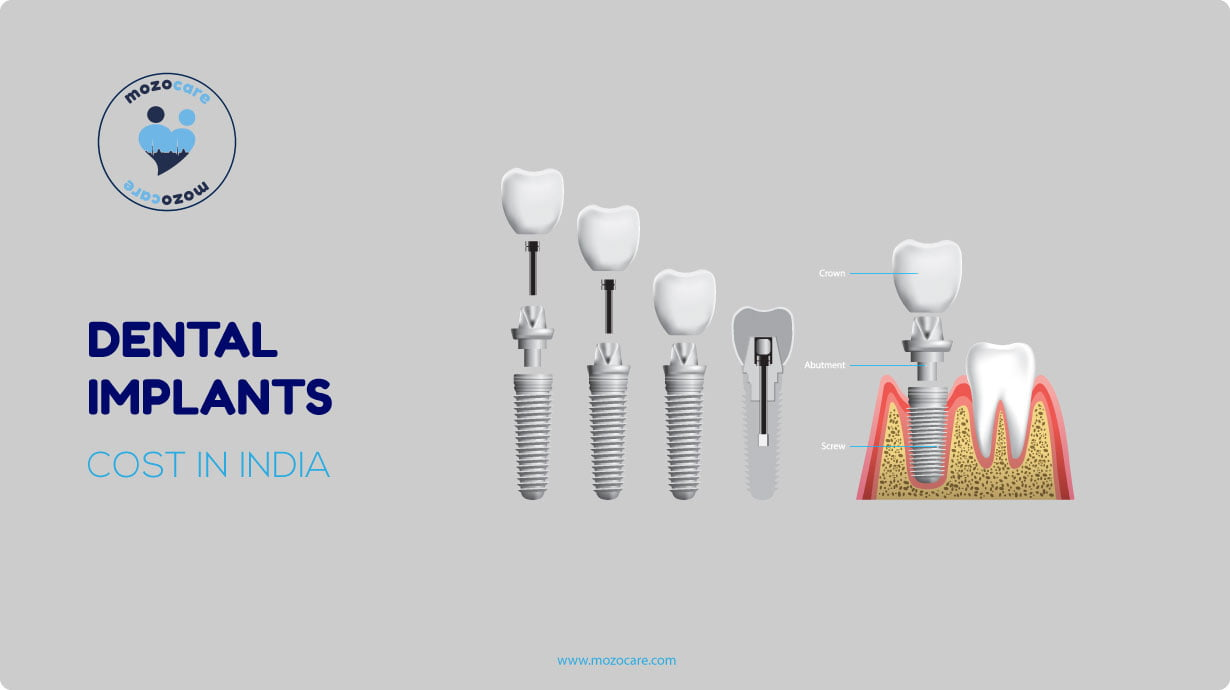 Dental-Implant-Cost-In-India