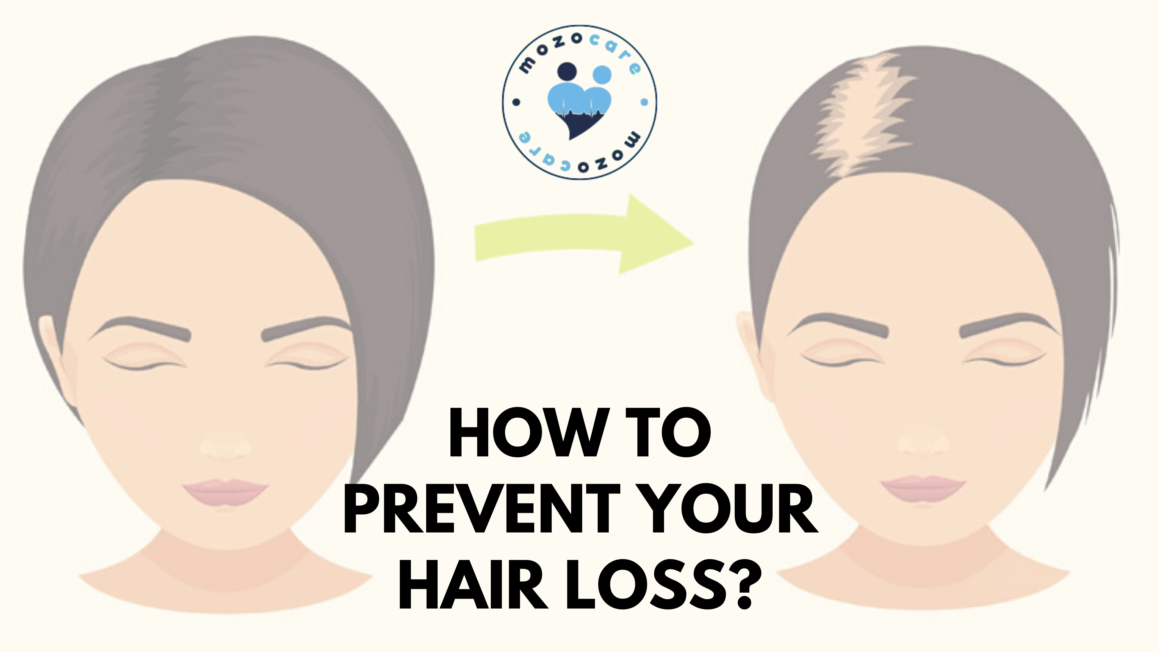 How To Prevent Your Hair Loss?