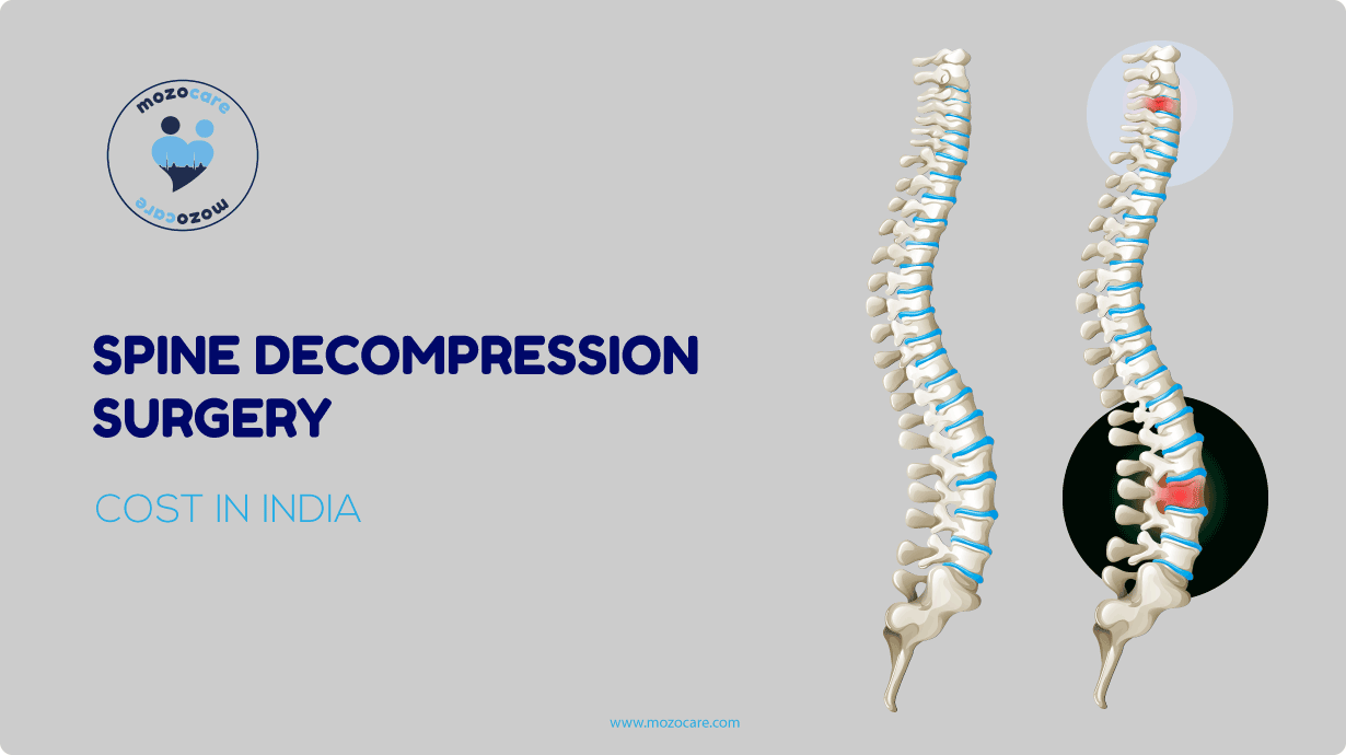 Cost of spine decompression in india
